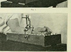 This image is taken from Page 256 of The Journal of laboratory and clinical medicine, 08 (Medical Heritage Library, Inc.) Tags: biological assay diagnosis laboratory disease medicine research gerstein toronto medicalheritagelibrary date1915 idjournaloflaborat08cent