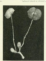 This image is taken from Page 137 of The Journal of laboratory and clinical medicine, 08 (Medical Heritage Library, Inc.) Tags: biological assay diagnosis laboratory disease medicine research gerstein toronto medicalheritagelibrary date1915 idjournaloflaborat08cent