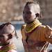 Turkana concentration