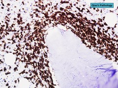 Qiao's Pathology: Follicular Lymphoma Involving Bone Marrow (Qiao's Pathology (Art and Science in Medicine)) Tags: qiaos pathology follicular lymphoma involving bone marrow microscopic ihcstain cd20