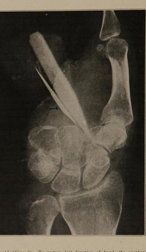 This image is taken from Restoration of loss of bone : including an analysis of the first hundred cases of fracture treated by bone graft at U.S. Army General Hospital No. 3, Colonia, N.J.