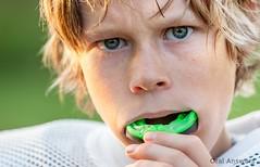 Denture (dr.kamihoss) Tags: dr kami hoss denture