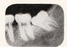 This image is taken from Page 478 of Principles of exodontia as applied to the impacted mandibular third molar : a complete treatise on the operative technic with clinical diagnoses and radiographic interpretations (Medical Heritage Library, Inc.) Tags: tooth extraction radiography dental teeth wellcomelibrary ukmhl medicalheritagelibrary europeanlibraries date1926 idb2981974x