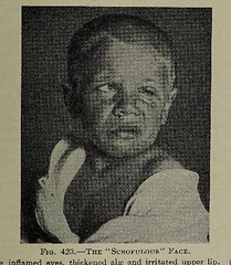 This image is taken from Page 815 of The diseases of infants and children, Vol. 2 (Medical Heritage Library, Inc.) Tags: pediatrics children diseases infants wellcomelibrary ukmhl medicalheritagelibrary europeanlibraries date1927 idb313606100002