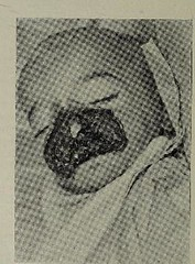 This image is taken from Page 16 of The diseases of infants and children, Vol. 2 (Medical Heritage Library, Inc.) Tags: pediatrics children diseases infants wellcomelibrary ukmhl medicalheritagelibrary europeanlibraries date1927 idb313606100002