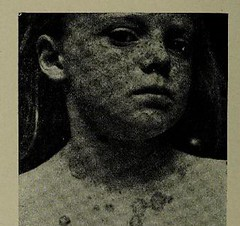 This image is taken from Page 906 of The diseases of infants and children, Vol. 2 (Medical Heritage Library, Inc.) Tags: pediatrics children diseases infants wellcomelibrary ukmhl medicalheritagelibrary europeanlibraries date1927 idb313606100002