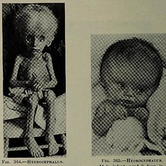 This image is taken from Page 650 of The diseases of infants and children, Vol. 2 (Medical Heritage Library, Inc.) Tags: pediatrics children diseases infants wellcomelibrary ukmhl medicalheritagelibrary europeanlibraries date1927 idb313606100002