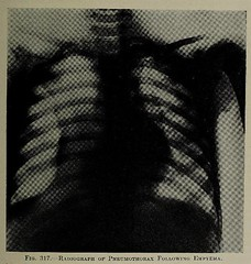 This image is taken from Page 373 of The diseases of infants and children, Vol. 2 (Medical Heritage Library, Inc.) Tags: pediatrics children diseases infants wellcomelibrary ukmhl medicalheritagelibrary europeanlibraries date1927 idb313606100002