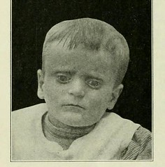 This image is taken from Page 254 of The Journal of neurology and psychopathology, 01-02 (Medical Heritage Library, Inc.) Tags: nervous system neurology psychology pathological gerstein toronto medicalheritagelibrary date1920 idjournalofneurolo01brit