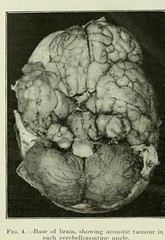 This image is taken from Page 146 of The Journal of neurology and psychopathology, 01-02 (Medical Heritage Library, Inc.) Tags: toronto system nervous psychology neurology gerstein pathological date1920 medicalheritagelibrary idjournalofneurolo01brit