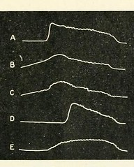This image is taken from Page 125 of The Journal of neurology and psychopathology, 01-02 (Medical Heritage Library, Inc.) Tags: nervous system neurology psychology pathological gerstein toronto medicalheritagelibrary date1920 idjournalofneurolo01brit