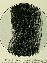 This image is taken from Page 110 of The Journal of neurology and psychopathology, 01-02 (Medical Heritage Library, Inc.) Tags: nervous system neurology psychology pathological gerstein toronto medicalheritagelibrary date1920 idjournalofneurolo01brit