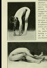 This image is taken from Page 46 of The Journal of neurology and psychopathology, 01-02 (Medical Heritage Library, Inc.) Tags: nervous system neurology psychology pathological gerstein toronto medicalheritagelibrary date1920 idjournalofneurolo01brit