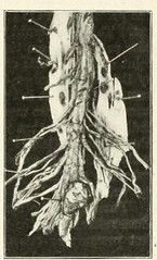 This image is taken from Page 147 of The Journal of neurology and psychopathology, 01-02 (Medical Heritage Library, Inc.) Tags: nervous system neurology psychology pathological gerstein toronto medicalheritagelibrary date1920 idjournalofneurolo01brit