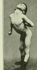 This image is taken from Page 152 of The Journal of neurology and psychopathology, 01-02 (Medical Heritage Library, Inc.) Tags: nervous system neurology psychology pathological gerstein toronto medicalheritagelibrary date1920 idjournalofneurolo01brit