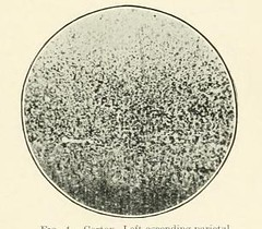 This image is taken from Page 109 of The Journal of neurology and psychopathology, 01-02 (Medical Heritage Library, Inc.) Tags: nervous system neurology psychology pathological gerstein toronto medicalheritagelibrary date1920 idjournalofneurolo01brit