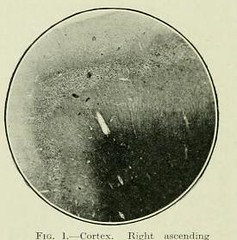 This image is taken from Page 108 of The Journal of neurology and psychopathology, 01-02 (Medical Heritage Library, Inc.) Tags: nervous system neurology psychology pathological gerstein toronto medicalheritagelibrary date1920 idjournalofneurolo01brit