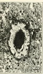 This image is taken from Page 39 of The Journal of neurology and psychopathology, 01-02 (Medical Heritage Library, Inc.) Tags: nervous system neurology psychology pathological gerstein toronto medicalheritagelibrary date1920 idjournalofneurolo01brit