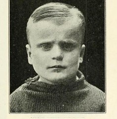 This image is taken from Page 255 of The Journal of neurology and psychopathology, 01-02 (Medical Heritage Library, Inc.) Tags: nervous system neurology psychology pathological gerstein toronto medicalheritagelibrary date1920 idjournalofneurolo01brit
