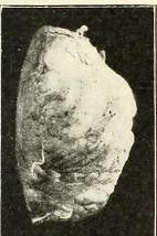 This image is taken from Page 145 of The Journal of neurology and psychopathology, 01-02 (Medical Heritage Library, Inc.) Tags: nervous system neurology psychology pathological gerstein toronto medicalheritagelibrary date1920 idjournalofneurolo01brit