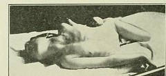 This image is taken from Page 154 of The Journal of neurology and psychopathology, 01-02 (Medical Heritage Library, Inc.) Tags: nervous system neurology psychology pathological gerstein toronto medicalheritagelibrary date1920 idjournalofneurolo01brit