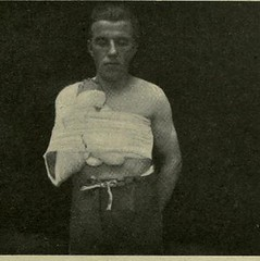 This image is taken from Treatment of injuries of the peripheral spinal nerves (Medical Heritage Library, Inc.) Tags: nerves wounds and injuries gerstein toronto medicalheritagelibrary universityoftoronto date1922 idtreatmentofinjur00stiluoft