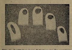 This image is taken from Page 137 of Zeitschrift fur das Osterreichische Blindenwesen, 11-14, 1924-1927 (Medical Heritage Library, Inc.) Tags: visual impairments aphmigel medicalheritagelibrary americana date1927 idzeitschriftfurda1114unse