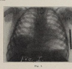 This image is taken from Page 31 of Wisconsin Medical Journal, 26, (1927) (Medical Heritage Library, Inc.) Tags: medicine periodicals wisconsin state history 20th century collegeofphysiciansofphiladelphia statemedicalsocietyjournals medicalheritagelibrary americana date1927 idwisconsinmedical2619stat