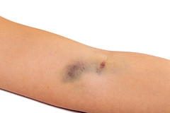 Big bruise on his arm after intravenous injection (wuestenigel) Tags: arm bruise dropper medicine skin addict female adults therapy blood cure hematoma medication infection hospital vein hurt closeup people person bruising hand treatment white injury care bleeding injection intravenous health medical concept human addiction pain 2019 2020 2021 2022 2023 2024 2025 2026 2027