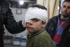 The injured child  The child lost his eye as a result of the air strikes that hit Syria, which hit his house, and lost his eye after the fall of one of the rockets. (IAPB/VISION 2020) Tags: child eye injury murder destruction war violence