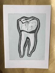 Molar linoblock print (artnoose) Tags: blue dentist illustration dental molar teeth tooth linoblock club month print letterpress patreon etsy