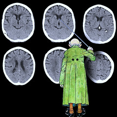 Scans (fillzees) Tags: eclectic scan brain butterfly labcoat figure head pointer cartoon drawing humor medical ct section pareidolia