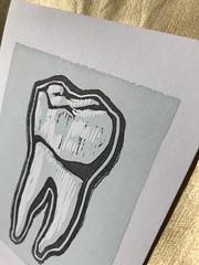 Molar print, oblique (artnoose) Tags: dentist blue dental molar teeth tooth club month print letterpress linoblock