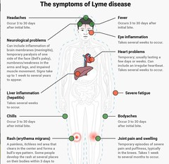 symptoms of lyme disease (Dr Boon Lim - Consultant Cardiologist London) Tags: lyme disease