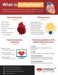 cardiac rhythm infographics (cardiacrhythmsolution) Tags: arrhythmia heartattack hearthealth heartdisease heartbeats