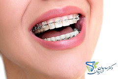 دانستنی های دندانپزشکی زیبایی (dr.torabian.com) Tags: دندانپزشک خوب در تهران