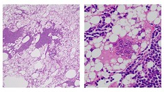 Silicone Lymphadenopathy (Y. Rosen, MD) Tags: foreignbody exogenous breast implant silicone microscopic lymphnode