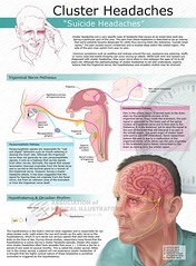 """Infographic : Cluster Headaches """" Suicide Headaches """" (smallpocketlibrary) Tags: free book bookspdf pdf medicine psychology ebook booksmedicine nutrition cosmos universe science physics technology astronomy neurology surgery anatomy biology chemistry mathematics university infographic picture photography animal wildlife fitness insects amazing wonderful incredibility beauty awesome nature smallpocketlibrary"""