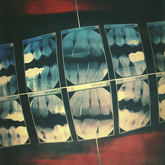 day 345 (Randomographer) Tags: project365 tooth teeth hard calcified structure jaw mouth crooked xray image xrays highenergy electromagnetic radiation x ray radiology digital dentist dental checkup radiography radiograph cavities oral 345 365 vii 2019