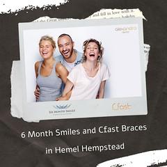 6 Month Smiles and Cfast Braces Hemel Hempstead (james.alexdental) Tags: 6 month smiles cfast braces hemel hempstead