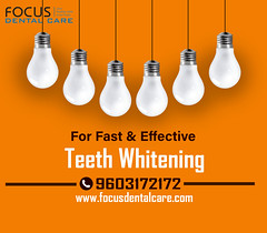 Teeth Whitening in Hyderabad (focus 5) Tags: teeth whitening laser philips zoom dental bestdentalimplantsclinicinhyderabad