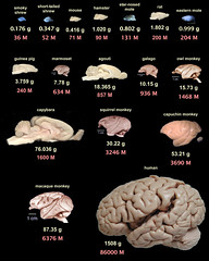 Poster : Comparison of Different Mammalian Brains (smallpocketlibrary) Tags: free book bookspdf pdf medicine psychology ebook booksmedicine nutrition cosmos universe science physics technology astronomy neurology surgery anatomy biology chemistry mathematics university infographic picture photography animal wildlife fitness insects amazing wonderful incredibility beauty awesome nature smallpocketlibrary
