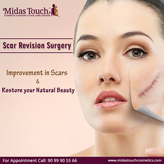 Restore Your Natural Beauty with Scar Revision Surgery (midastouchcosmetic) Tags: scarrevision scarsurgery skincare midastouchcosmetic