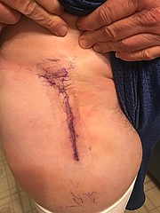 My Incision looks great. Total Hip Replacement. 1 - 21 - 2020 (shark44779011) Tags: me surgery hip replacement