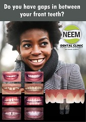 Do you have gaps in between your front teeth? (Neem Dental Clinic) Tags: saturday hygiene clean whitening homekit denture dentist south harrow cosmetic dentistry bridges veneers crowns teeth northolt ruislip rayners lane emergency midllesex tooth fracture grinding swallowing dentures toothaches abscessed decay cost