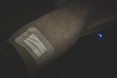 Day 44 of 366 (Richard Reader (luciferscage)) Tags: day44of366 85 blood blooddonation stickyplaster armfulofblood tonyhancock