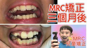 MRC-肌功能訓練-1-e1583980925298